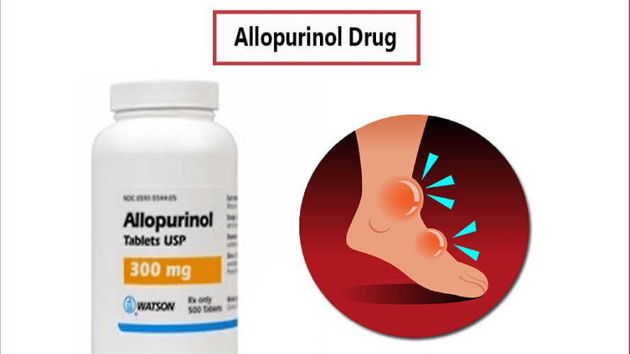 Allopurinol Drug
